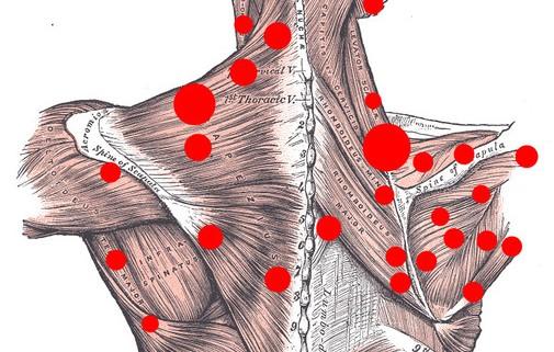 massagem dos pontos de gatilho
